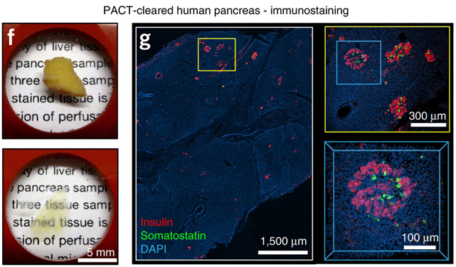 Whole-body tissue stabilization and selective extractions via tissue-hydrogel hybrids for high-resolution intact circuit mapping and phenotyping
